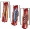 Пройти аортокоронарное шунтирование сосудов за рубежом