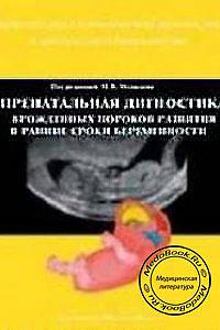 Пренатальная диагностика врожденных пороков развития в ранние сроки беременности — обложка книги.