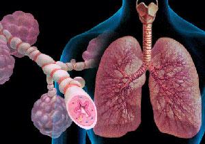 астма