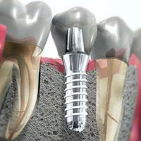 Зубной имплантат.