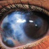 Глаукома, симптомы, диагностика и лечение