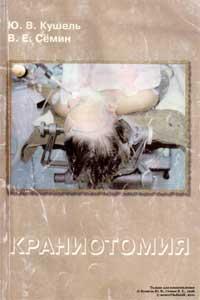 Краниотомия — обложка книги.
